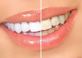 С помощью чего можно отбелить зубы?