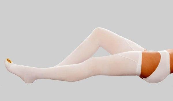 Компрессионное белье — лучшая профилактика варикоза