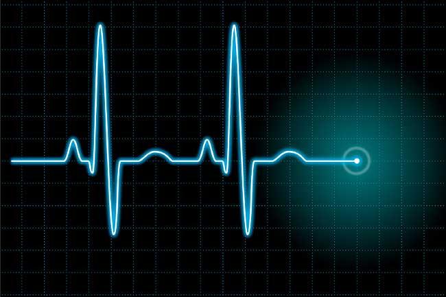 Какая нормальная частота пульса для мужчин?