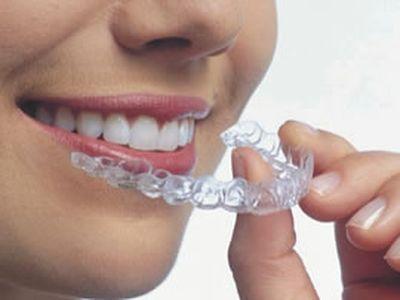 Современная стоматология – виды и направления