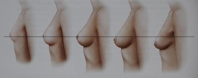 Мастопексия – подтяжка молочных желез