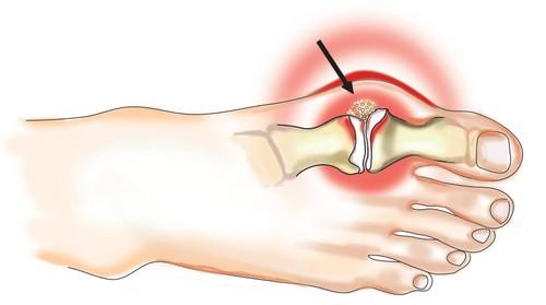 Подагра: симптомы, диагностика и лечение