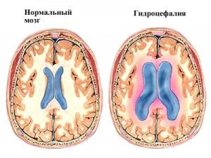 Отек мозга и симптомы. Каковы причины, и какими могут быть последствия