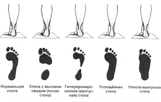 Плоскостопие: как выявить и что делать