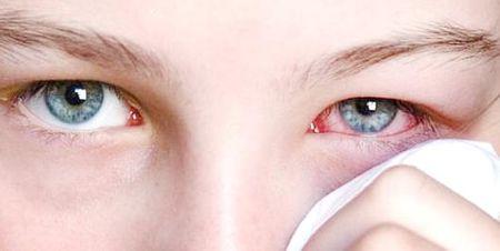 Заболевания век: симптоматика и лечение