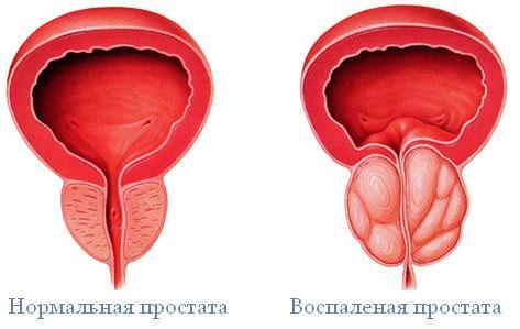 Лечение простатита с использованием лазера