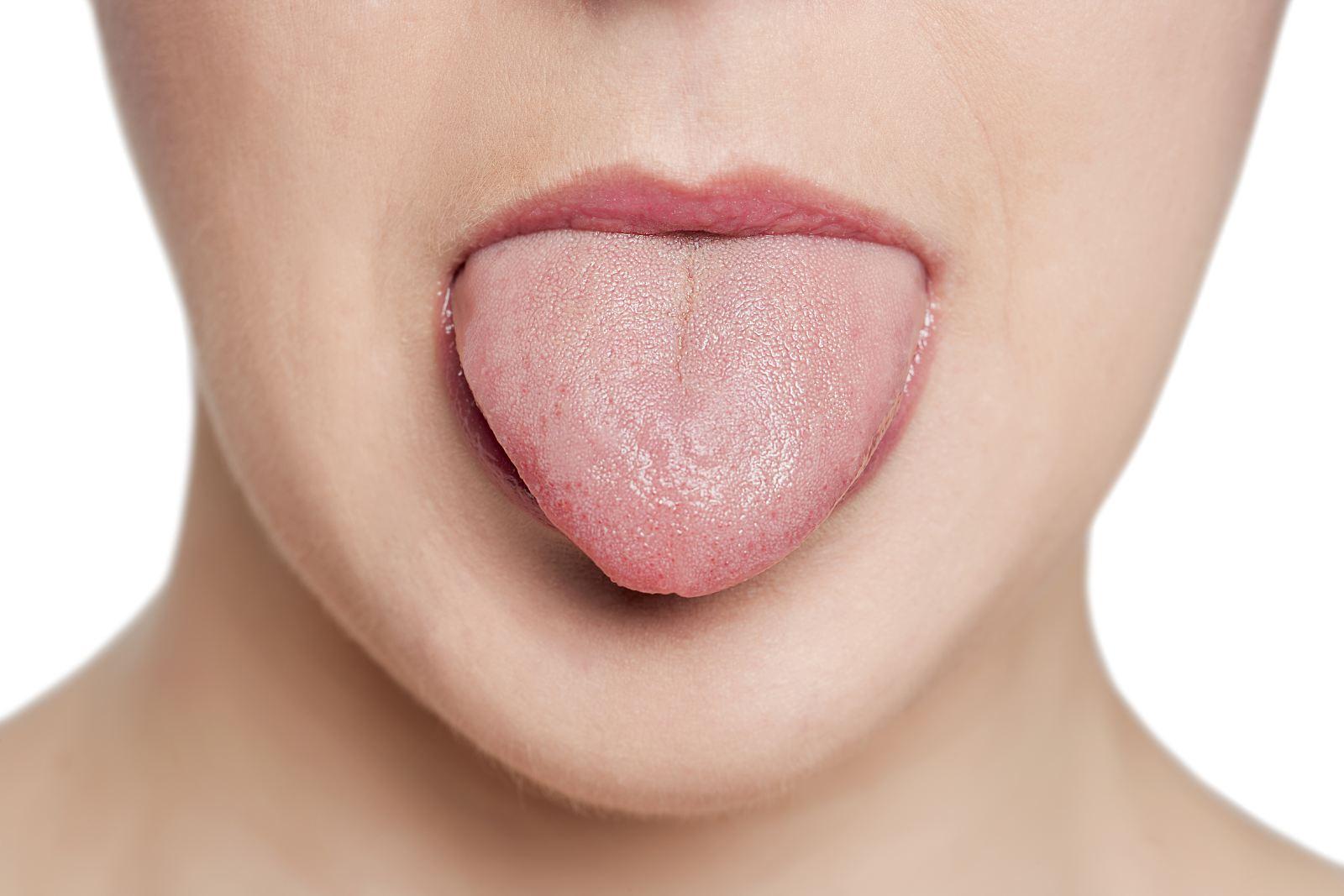Симптомы и лечение лейкоплакии полости рта