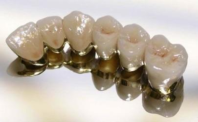 Плюсы и минусы металлокерамических протезов