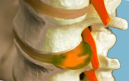 Клиника ВИТА НОВА — лечение и восстановительная реабилитация по доступным ценам