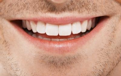 Еще раз об отбеливании зубов дома