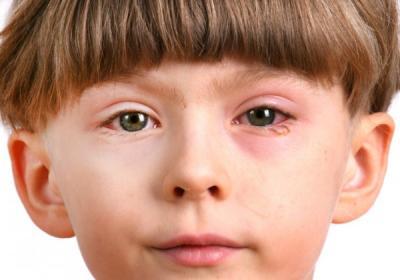 Заболевания глаз у детей