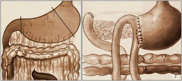 Что представляет собой резекция желудка, показания к ней и питание после операции