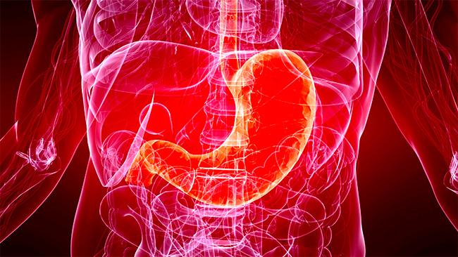 Особенности и симптомы метастазов при раке желудка