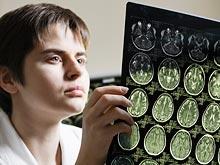 Эффективность лечения стрессового расстройства зависит от размера гиппокампа
