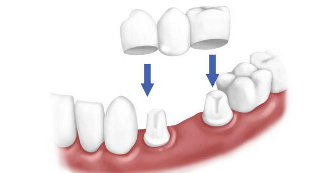 Восстановление целостности и функций зубов
