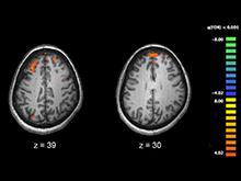 Специалисты пролили свет на роль генетики в развитии шизофрении