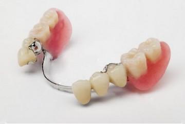 Бюгельное протезирование зубов.