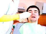 Страх перед стоматологами связали с кариесом и выпадением зубов