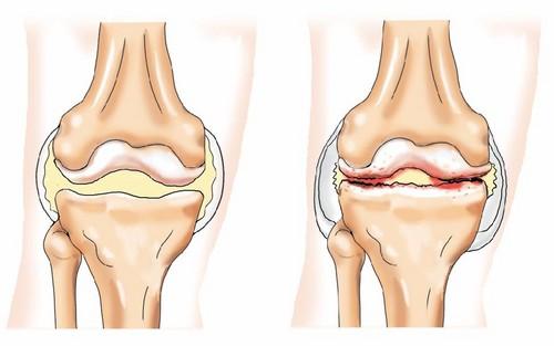 Ревматоидный артрит как разновидность ревматизма