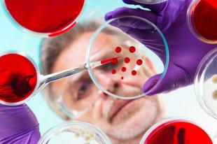 В Японии ученые проверили на макаках метод борьбы с болезнью Паркинсона