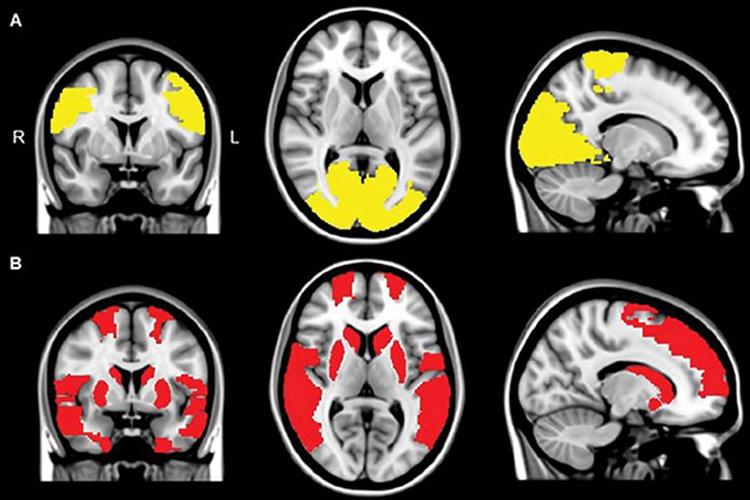 Болезнь Паркинсона: как возникают галлюцинации?