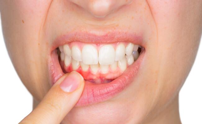 Гингивит: симптомы болезни и эффективное лечение