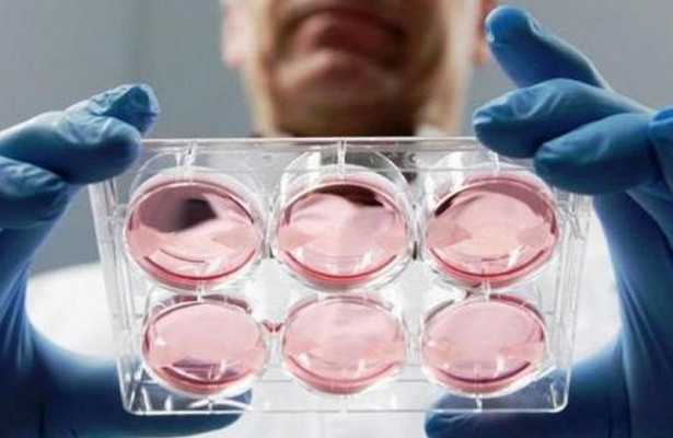 Шизофрению теперь можно определять у эмбрионов