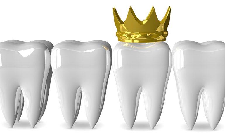 Какие коронки лучше ставить на жевательные зубы