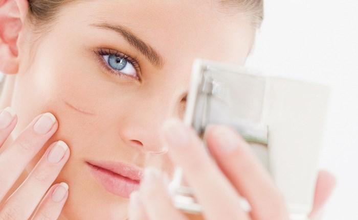 Натуральные средства для удаления шрамов