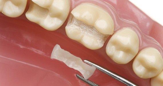 Пломбирование зуба и что такое пломба