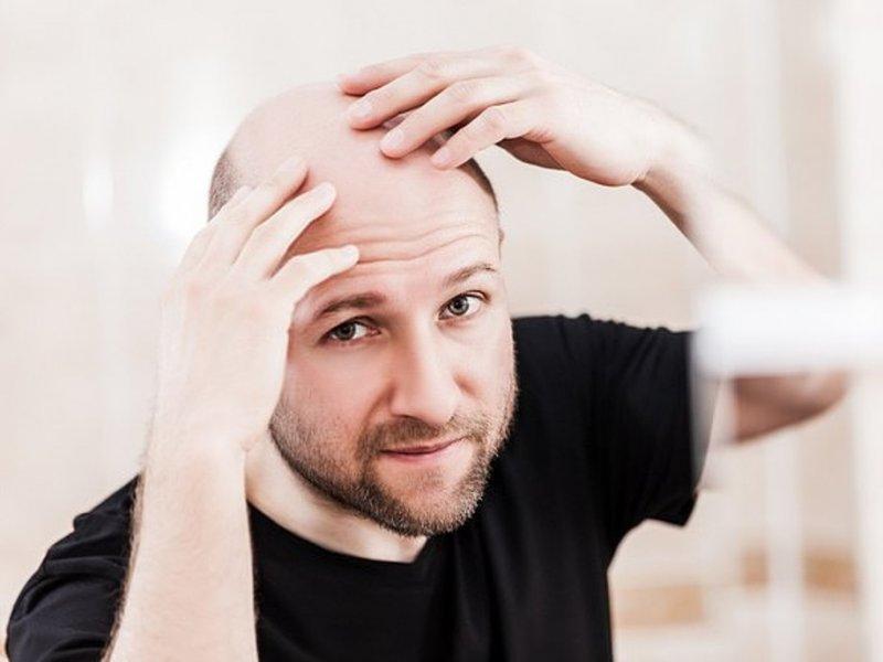 Вырастут ли волосы после стрессового облысения?