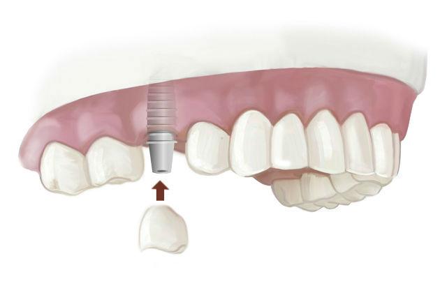 Технология протезирования на шести имплантах