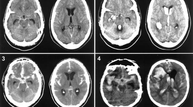 Лейкоареоз головного мозга: особенности, причины, лечение заболевания