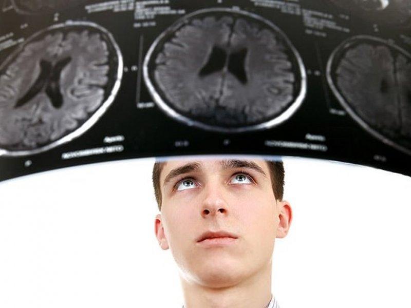 Подростковую депрессию можно предсказать по сканам мозга