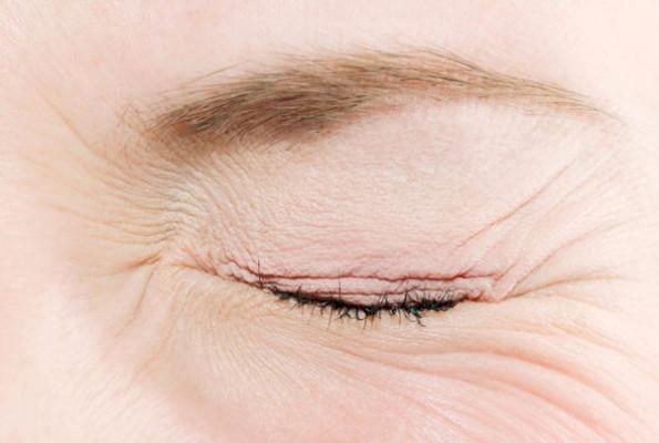 Бытовой ожог глаз: как оказать первую помощь?