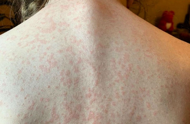5 болезней кожи, которые говорят о психологических проблемах