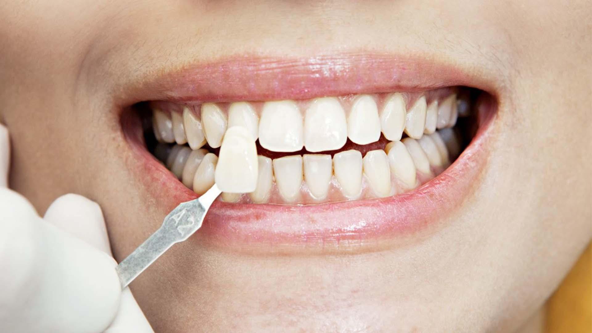 Косметическая стоматология – возможности и процедуры