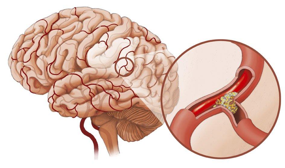 Что нужно знать о ишемическом инсульте?