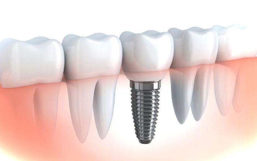 Имплантация зубов: этапы процедуры и срок службы имплантатов