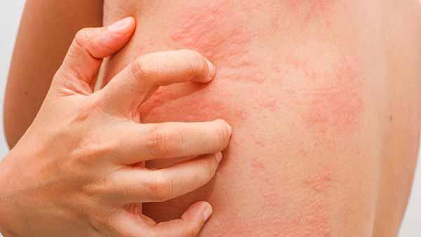 Анализ на холодовую аллергию
