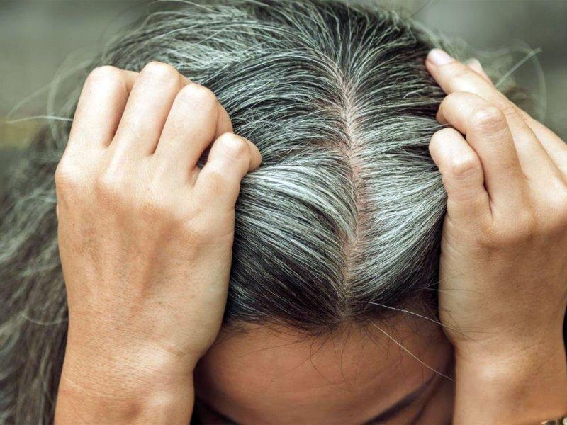 Стресс действительно делает волосы седыми