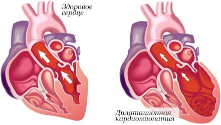 Кардиомиопатия: типы заболевания и их симптомы