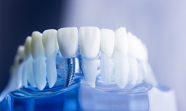Про зубные импланты
