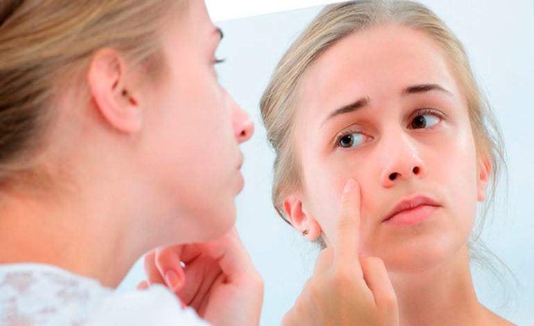 Угревая сыпь провоцируется стрессом