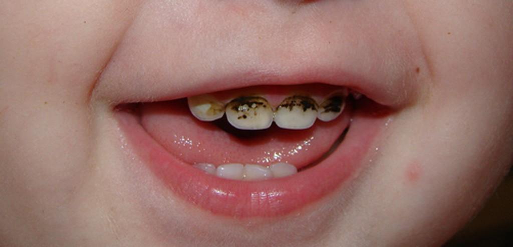 Почему не рекомендуется проводить серебрение зубов детям?