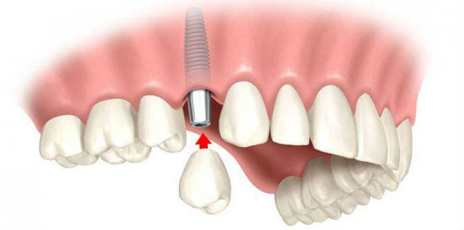 Возможные проблемы при проведении имплантации зубов.