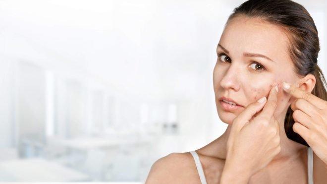 Подтверждена прямая связь между акне и депрессией