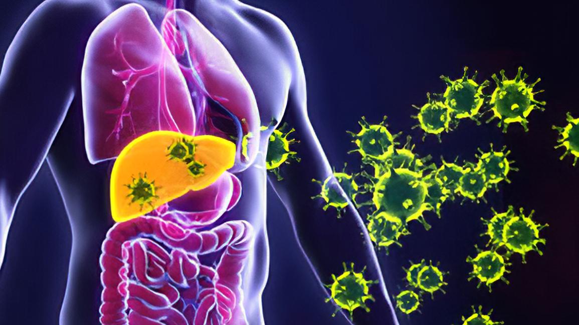 Заболевание гепатит C