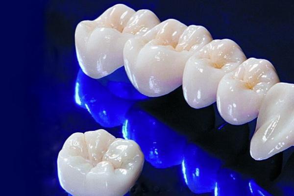 Циркониевые коронки в стоматологии в Киеве