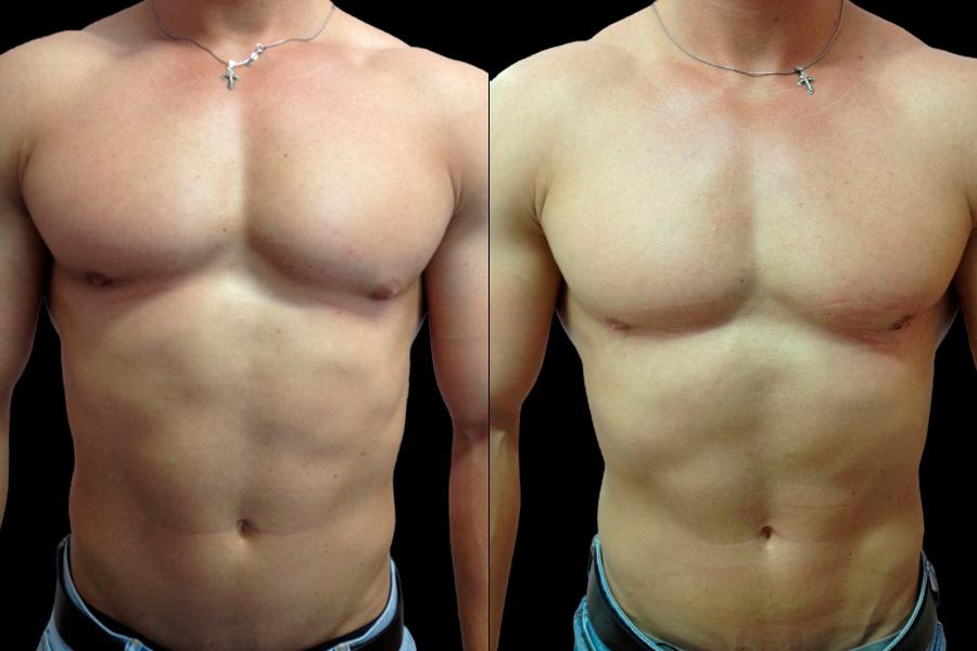 Коррекция гинекомастии у мужчин